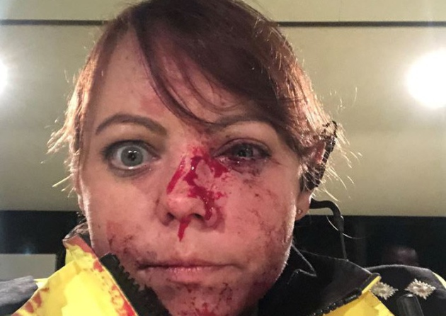 Horrific injuries suffered by police officer in brutal city centre attack
